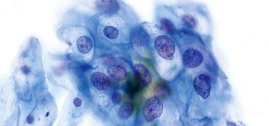 Citología de una lesión provocada por el Virus del papiloma Humano