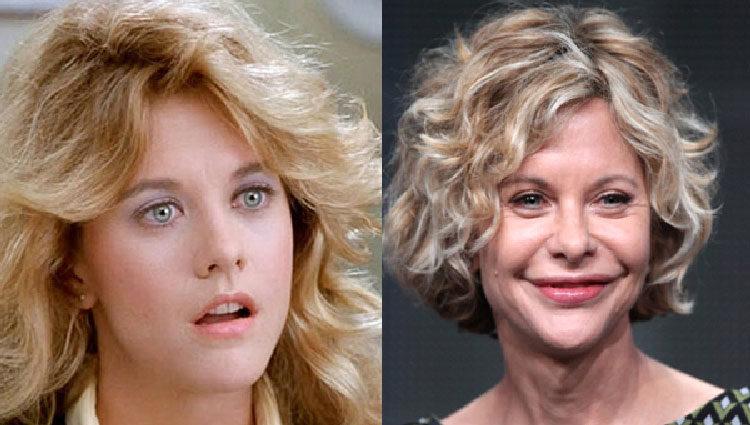 Meg Ryan antes y después de operarse