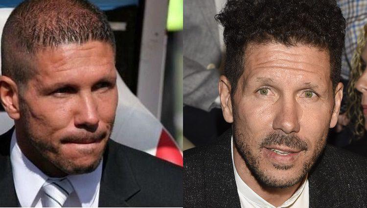 Simeone antes y después