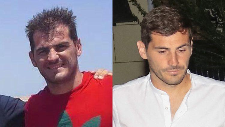 Iker Casillas con poco pelo y después de un tratamiento